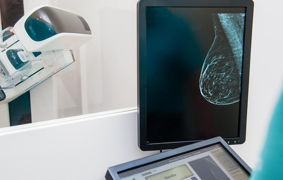 mamografia-digital_1578321654.62.jpg